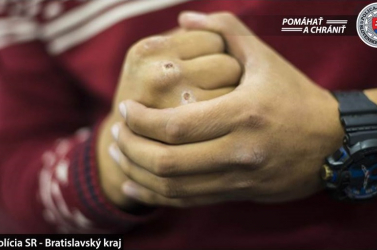 DURVA: Úgy megvert egy fiút a 19 éves fiatal, hogy kitörött két foga