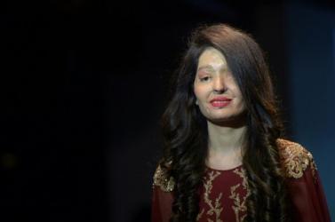 Savas támadásban elcsúfított arcú nők tartottak divatbemutatót – FOTÓK