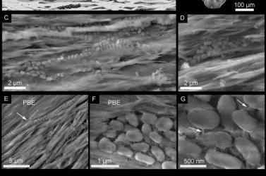 38 millió éves baktériumokra leltek cápafogakban