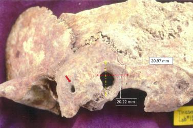 Bonyolult agyműtét nyomait fedezték fel egy kora középkori görögleleten