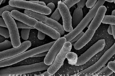haszontalan baktériumok)