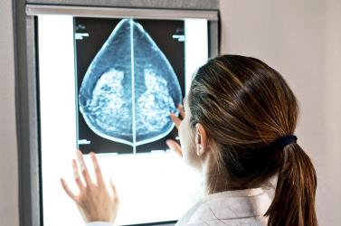 Az egyik legagresszívebb mellrák sejtjeinek terjedésétállították meg kutatók génszerkesztéssel