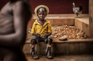 Az év UNICEF-fotója egy művégtagos kisfiú portréja