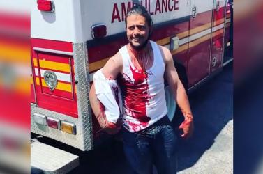40 centis késsel a fejében sétálgatott egy férfi, a mentőautóba sem akart beszállni – VIDEÓ 18+