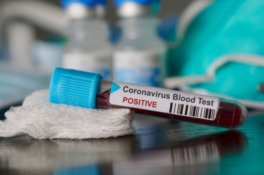 Pozitív lett a koronavírustesztje egy egészségügyi dolgozónak