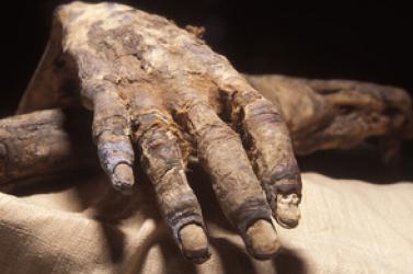Hepatitisze, nem himlője volt az Olaszországban talált gyerekmúmiának