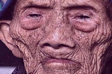 Emberek milliárdjainak reménye erősödhet meg: visszafordítható az öregedés!