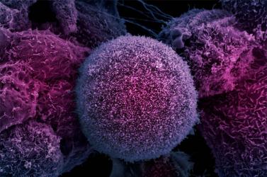 Új kezelés hosszabbíthatja meg az előrehaladott mellrákban szenvedők életét