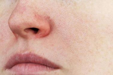 Van összefüggés a pénisz és az orr mérete között kutatók szerint