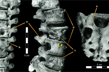 A mai embernél is megtalálható daganatot azonosítottak egy dinoszaurusz csigolyáján