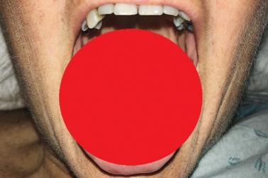 Kiszőrösödött egy nő nyelve az antibiotikumtól - FOTÓ