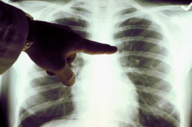 Nagyon súlyos fenyegetést jelent a világ többi részére a tüdőgyulladás-járvány