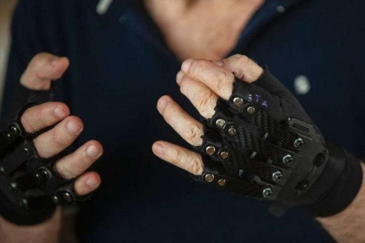 Bionikus kesztyűben ismét képes zongorázni mindkét kezével a zongoraművész