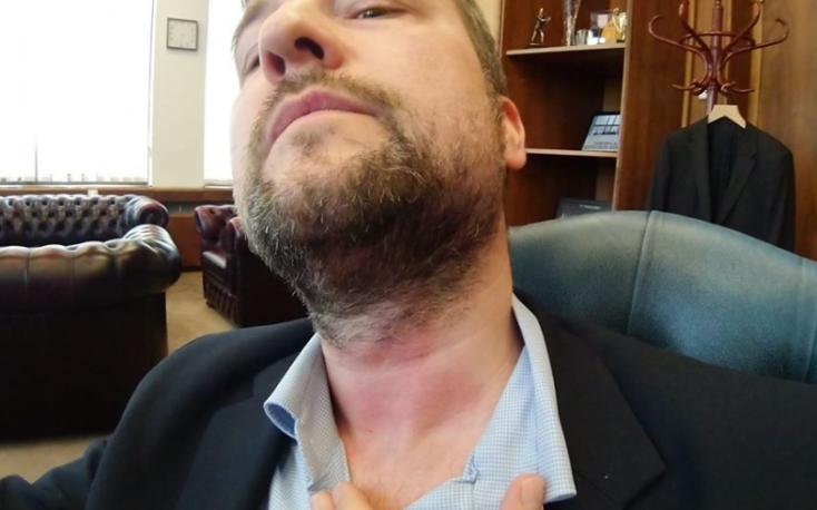 Bunyó a szlovák parlamentben! Fico piálása miatt kaphatott a pofájára a legpofátlanabb smeres képviselő