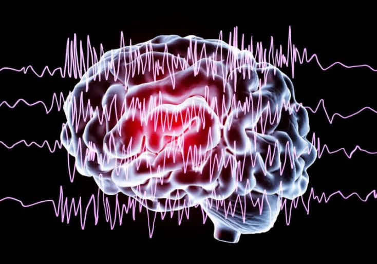 Epilepsziás rohamot előre jelző eszközt fejlesztettek ki izraeli kutatók
