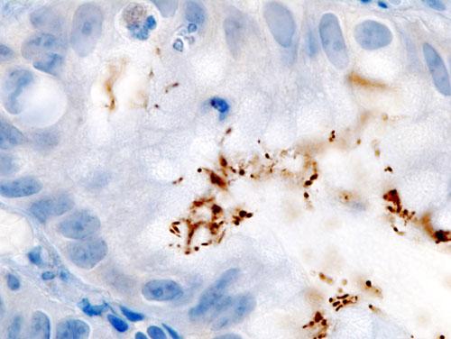 A rezisztens baktériumok terjedésére állított fel új epidemiológiai modellt egy magyar matematikus