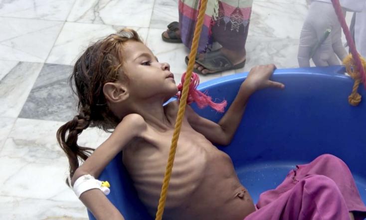 Kurva jól élünk nem Jemenben, tehetetlenül