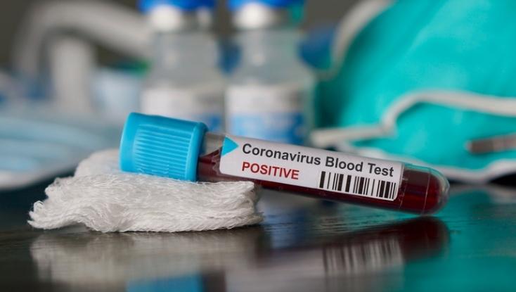 KORONAVÍRUS: Frissült az előrejelzés, július közepén jöhet el a csúcspont Szlovákiában, 170 ezren fertőződhetnek meg!