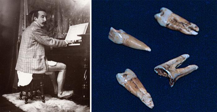Gauguin mégsem volt szifiliszes?