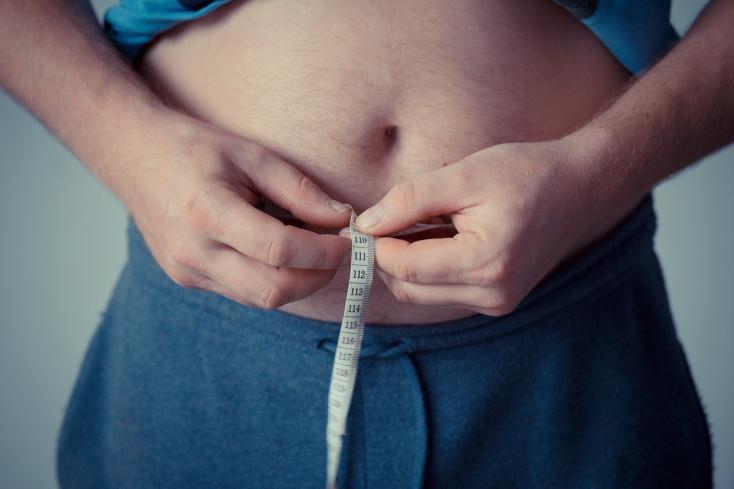 Kiderült, hogyan fokozza az elhízás a vastagbélrákot